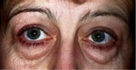 blepharo inf1